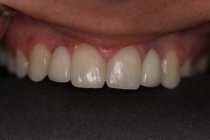 Kate After Dental Implants