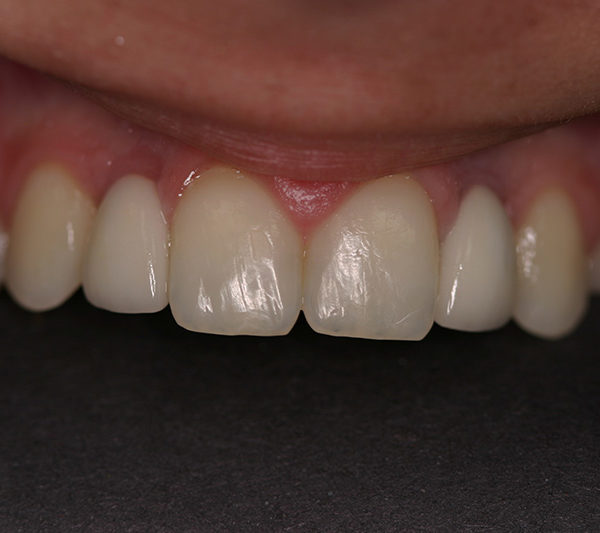 Kate After Dental Implants