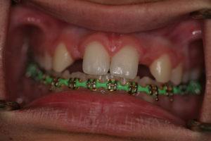 Kate Before Dental Implants