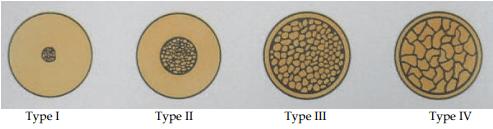 Types of bone densities