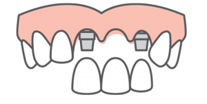 picture of a mouth