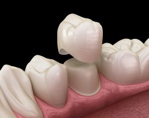 Dental crown premolar tooth assembly process. Medically accurate 3D illustration of human teeth treatment in Greensburg, PA