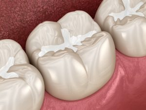 Dental filling in fillings, sealants, and crowns