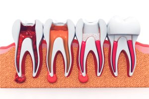 stages of root canal therapy in Greensburg, PA