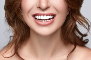 woman with perfect porcelain veneers showing off her teeth
