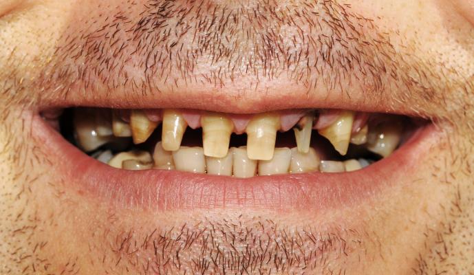 Badly damaged teeth