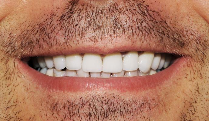 Perfectly restored teeth